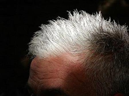 Tại sao con người lại bạc tóc?