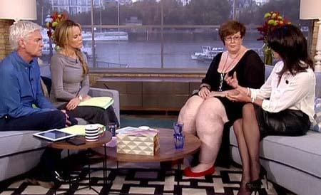 Người phụ nữ sở hữu đôi 'chân voi'