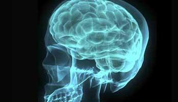 Elusive gene mutations found for second-most common brain tumor