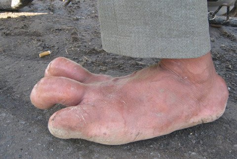 Man with giant foot in Phu Yen - News VietNamNet