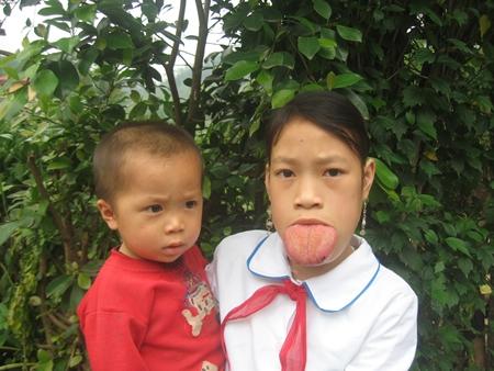 Tongue Vietnam