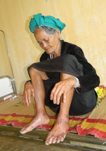 Fatal and Mysterious Skin Disease Returns To Central Vietnam