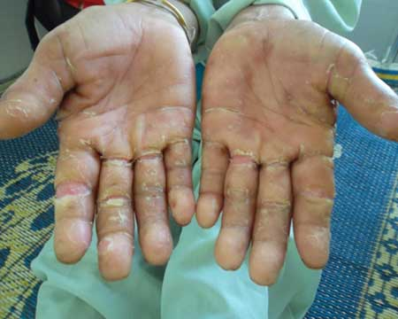 WHO scientists, Quang Ngai, skin mystery disease