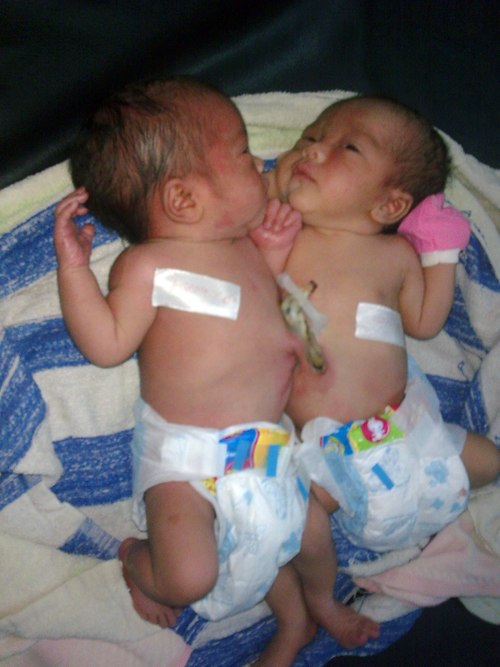 Conjoined twins born by normal delivery method - News VietNamNet