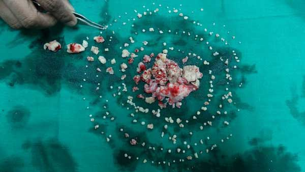 India doctors remove 232 teeth from boy's mouth