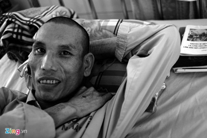Photos  Painful Outcomes Of Drug Users With Hiv  Aids