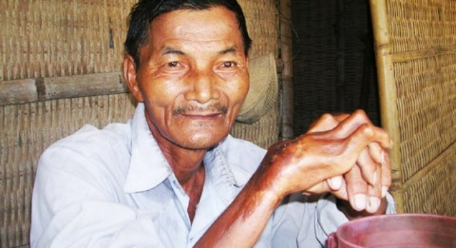 The man who has not slept for 45 years, sleepless man, Thai Ngoc