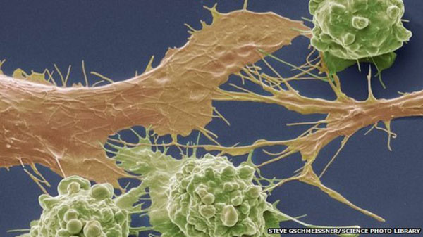 Bowel cancers 'spotted too late'