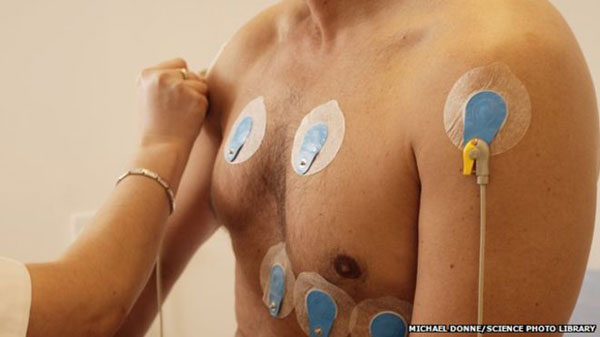 Elite athletes should get heart screening, says expert
