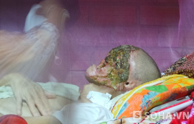 Man's face deformed by nose partition - News VietNamNet