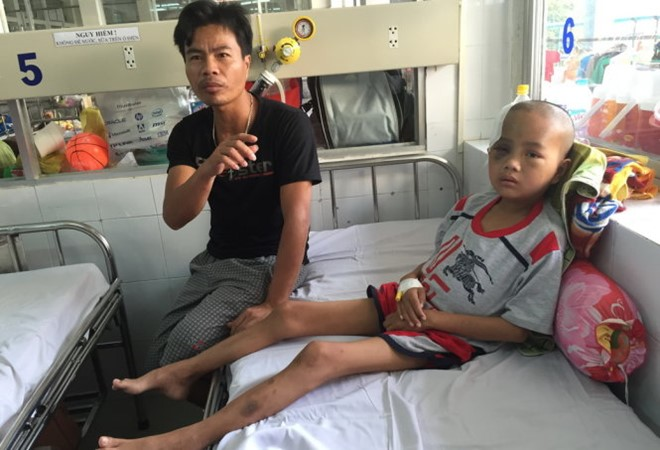 Surgery removes tapeworms from Vietnamese teenager's brain, social news, vietnamnet bridge, english news, Vietnam news, news Vietnam, vietnamnet news, Vietnam net news, Vietnam latest news, vn news, Vietnam breaking news
