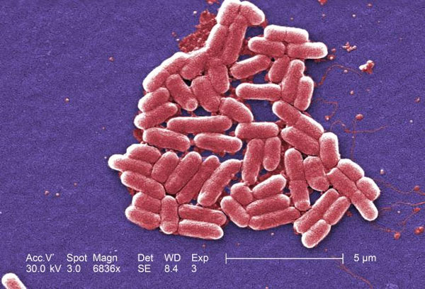 U.S. sees first case of bacteria resistant to all antibiotics