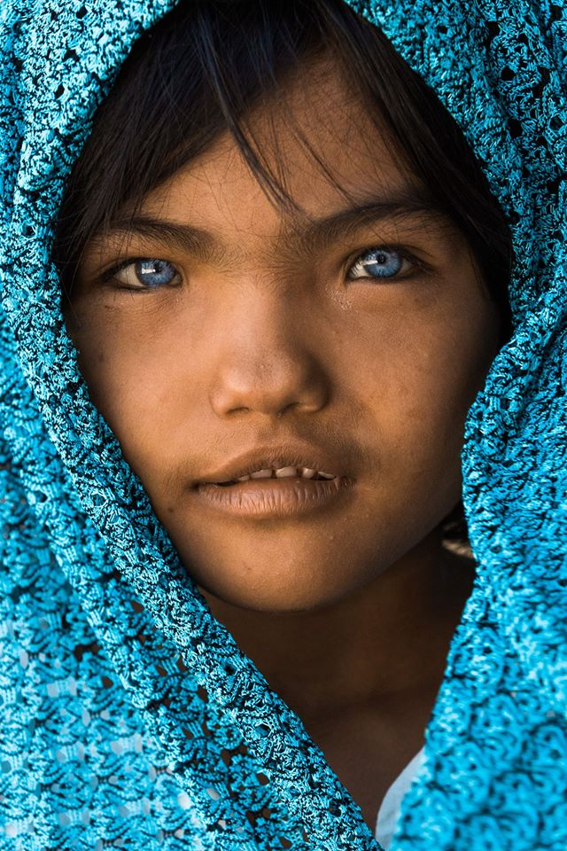 Vietnamese girl with differently colored eyes, thach thi sa pa, an phuoc, blue eyes, eyes with two colors, social news, vietnamnet bridge, english news, Vietnam news, news Vietnam, vietnamnet news, Vietnam net news, Vietnam latest news, vn news, Vietnam