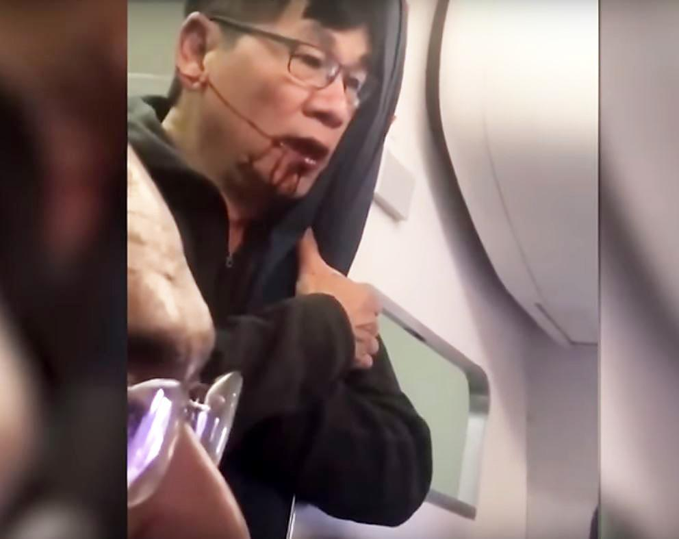United Airlines reaches settlement with Vietnamese American passenger who was dragged off plane
