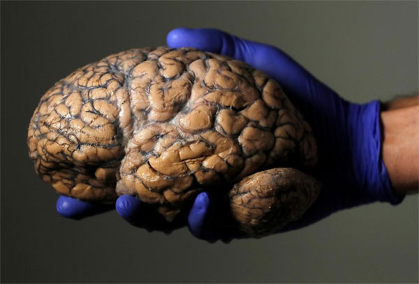 Belgian doctors pin hope on large brain collection to treat diseases