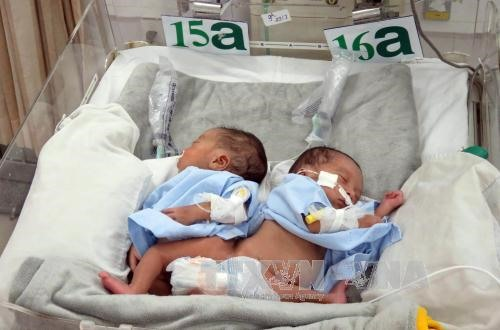 Doctors in HCM City separate conjoined twins successfully, social news, vietnamnet bridge, english news, Vietnam news, news Vietnam, vietnamnet news, Vietnam net news, Vietnam latest news, vn news, Vietnam breaking news