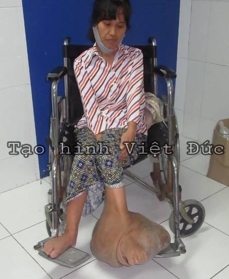 Surgeons remove 10kg tumour from a woman's leg, social news, vietnamnet bridge, english news, Vietnam news, news Vietnam, vietnamnet news, Vietnam net news, Vietnam latest news, vn news, Vietnam breaking news