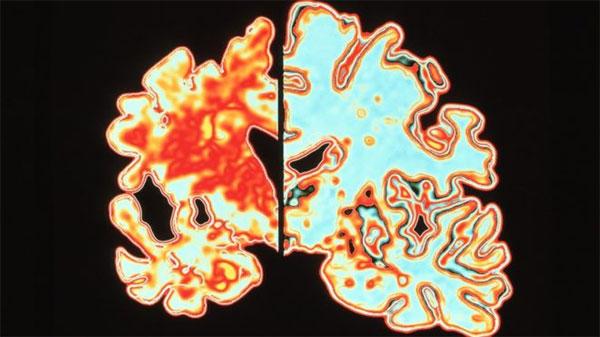 Alzheimer's researchers, win, brain prize