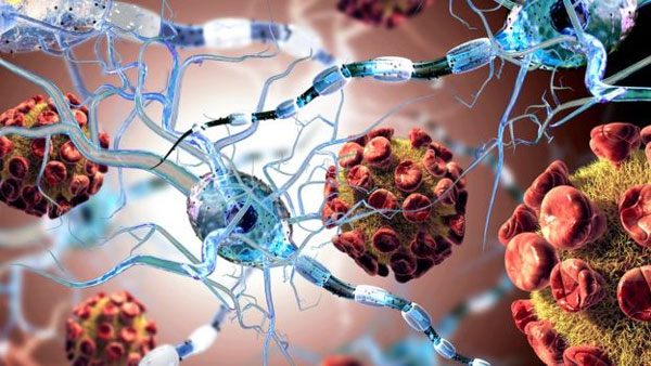 Stem cell transplant 'game changer' for MS patients