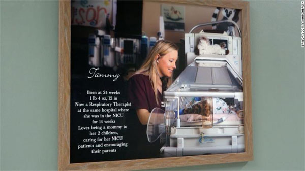 Texas, smallest baby, works in the NICU of the hospital